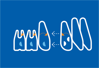 จัดฟันแบบใส invislign ด้วยสุดยอดเทคโนโลยีจัดฟันแบบ clear aligner